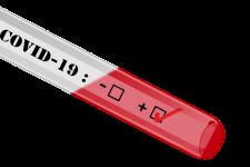 Cuadro manejo de casos y contactos COVID-19